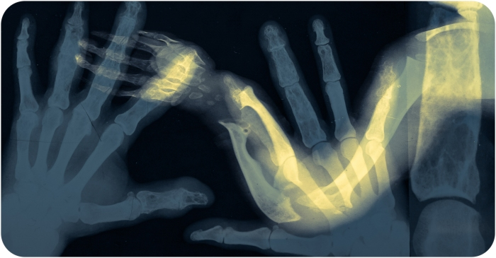 May 5 2014 X-Ray mesh2 (1 of 4)-2